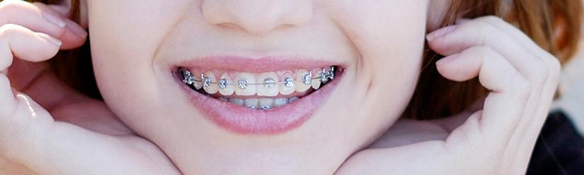 brackets metálicos - Clínica dental Denia Doctoras Gandía