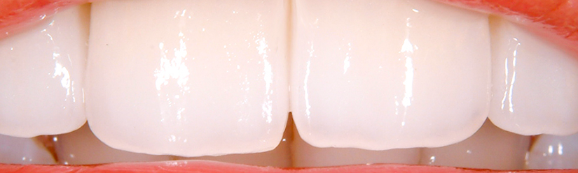 Carillas de composite cl nica dental denia doctoras gand a - Clinica dental gandia ...