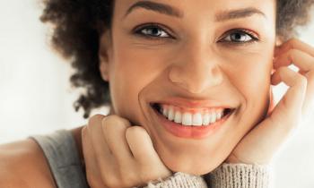 carillas de composite - carillas dentales - Clínica dental Denia Doctoras Gandía