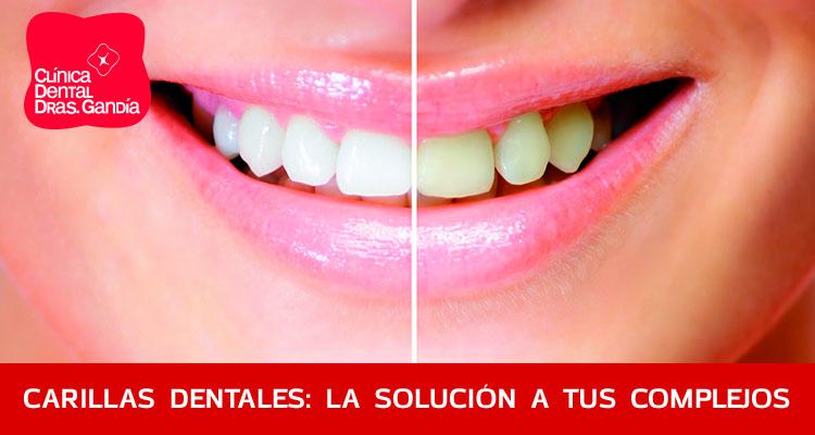carillas dentales - Clínica dental Denia Doctoras Gandía