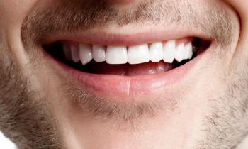 leucoplasia oral - odontologia conservadora - clínica dental denia doctoras gandia