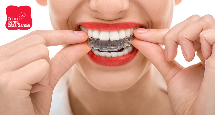 invisalign ortodoncia invisible especial diferente - Clínica dental Denia Doctoras Gandía