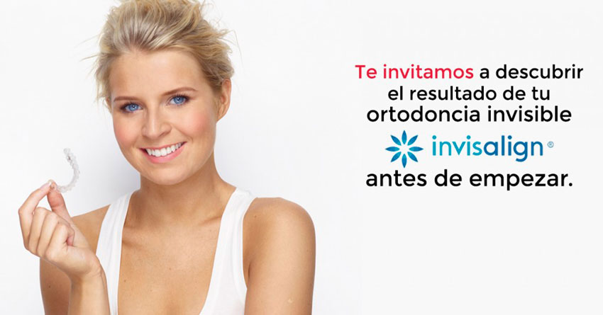 invisalign antes y despues - jornada invisalign - clinica dental denia doctoras gandia
